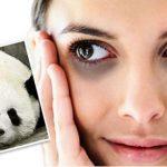 Một số cách trị quầng thâm ở mắt nhanh nhất