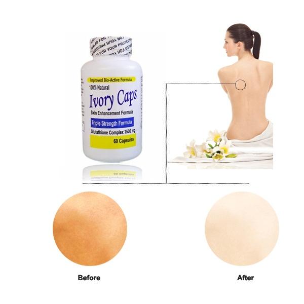 Viên Thuốc Ivory Caps Glutathione(60 Viên x 1500mg) trắng da, trị nám, tàn nhang