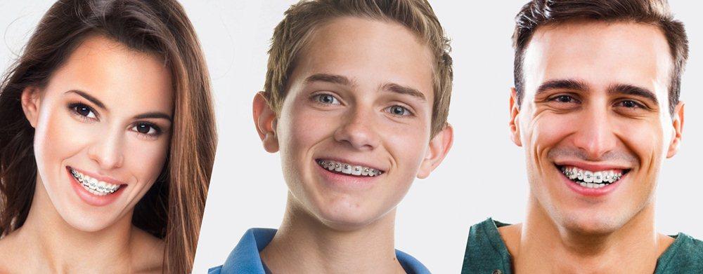 Niềng răng mặt trong mất bao lâu phụ thuộc vào độ tuổi