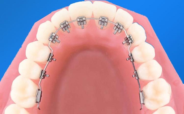 Thời gian niềng răng mặt trong mất bao lâu???