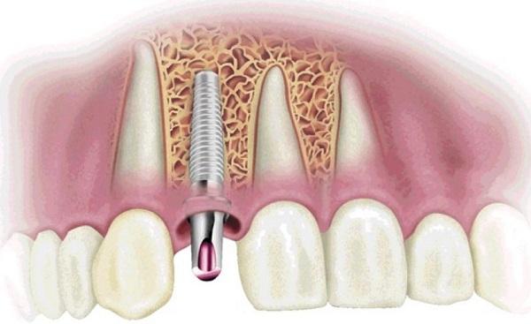 5-dieu-co-the-ban-chua-biet-ve-trong-rang-bang-phuong-phap-implant2