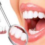 Tẩy trắng răng ở đâu tốt an toàn uy tín nhất hiện nay?