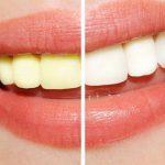 Nguyên nhân răng bị vàng ố và cách chữa trị triệt để
