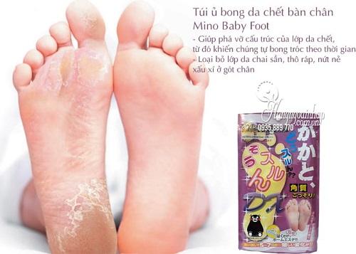 Cách chữa chai chân hiệu quả-2