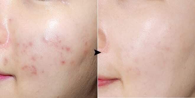 + 2 Cách dùng kem trị thâm smoothe hiệu quả